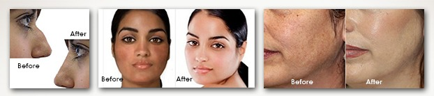 cosmetic surgeon marketing