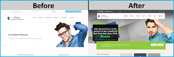 "Oxzin Creative Website Design for ""Rootz Clinic"" Before/After check it out!"