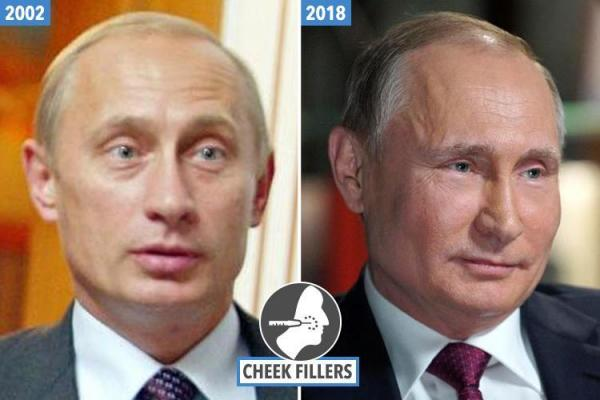 Two Faces of Vladimir Putin- Relation of cosmetic surgery with Russian President Putin