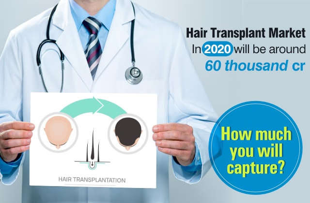 Hair Transplant Market In 2020 Will be Around 60 Thousand Crore, How Much You Will Capture